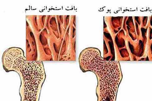 جلوگیری از پوکی استخوان با روش های علمی