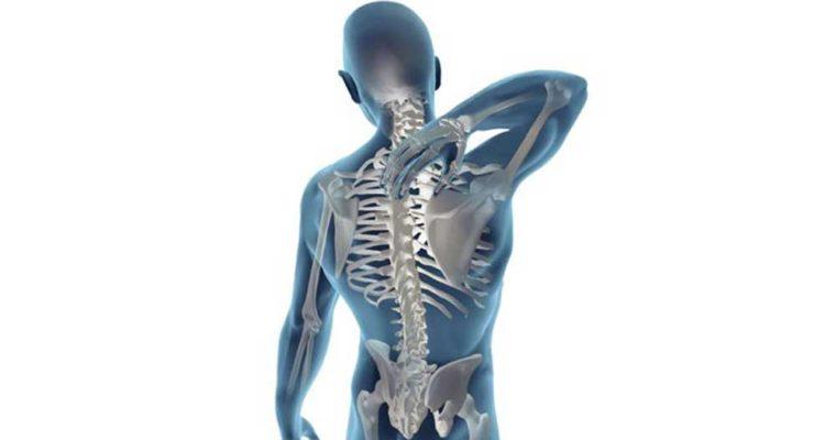 در مورد شایع ترین درد های عضلانی چه می دانید