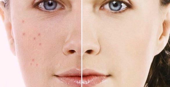 روشن کردن پوست با این 6 ماسک طبیعی