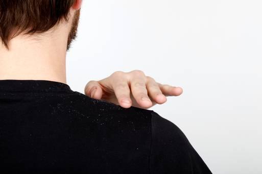 روش درمان شوره سر در فصل زمستان