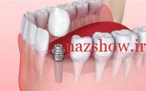 طول عمر ایمپلنت های دندانی